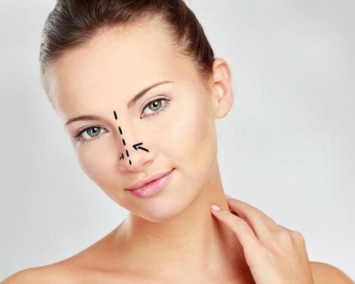 Rinoplastia cirugia estetica doctora Serna